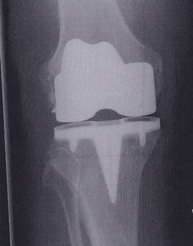 Bob's new knee